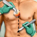 Open Heart Surgery Simulator :New Doctor Game 2021 APK MOD (Unlimited Money)